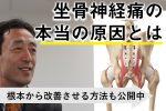 坐骨神経痛の原因と完治させる方法